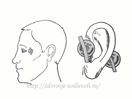 lechenie mednymi monetami zrenija i slyha